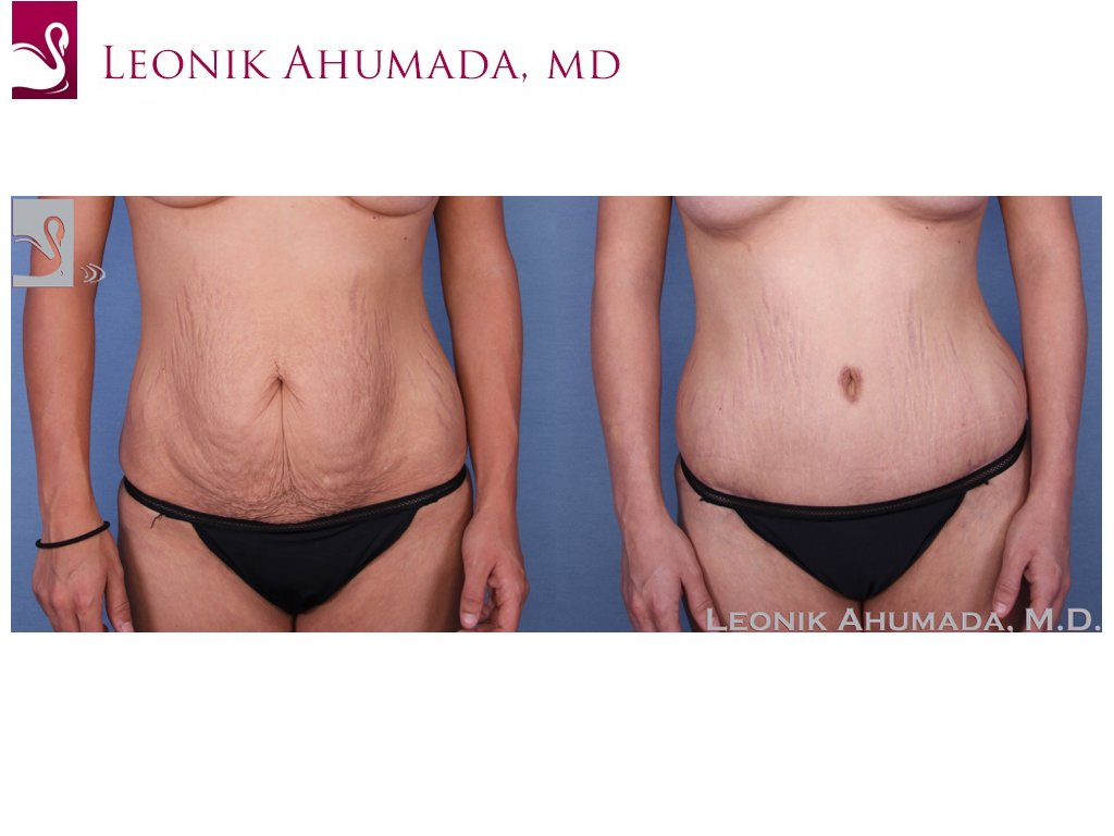 Abdominoplasty (Tummy Tuck) Case #52330 (Image 1)
