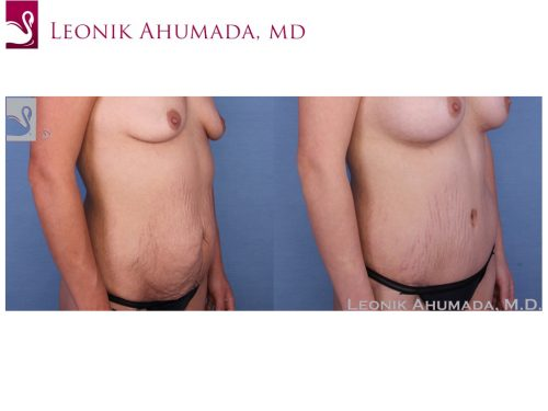 Abdominoplasty (Tummy Tuck) Case #52330 (Image 2)
