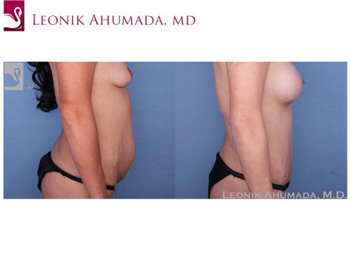 Abdominoplasty (Tummy Tuck) Case #52330 (Image 3)