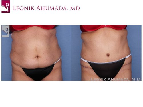Abdominoplasty (Tummy Tuck) Case #55833 (Image 1)