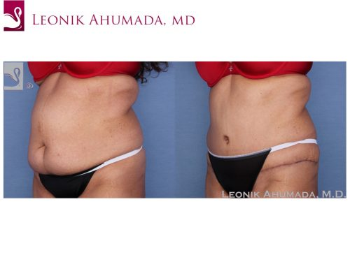 Abdominoplasty (Tummy Tuck) Case #55833 (Image 2)