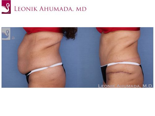 Abdominoplasty (Tummy Tuck) Case #55833 (Image 3)