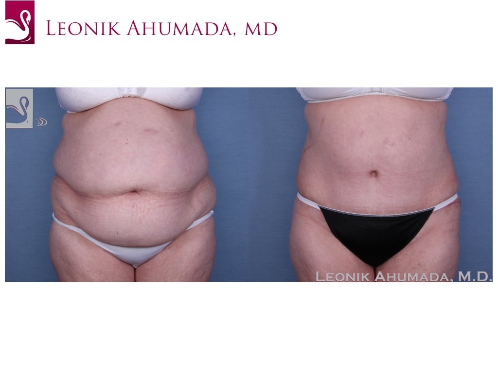 Abdominoplasty (Tummy Tuck) Case #56356 (Image 1)