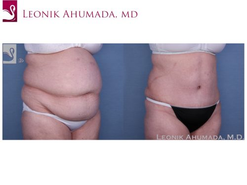 Abdominoplasty (Tummy Tuck) Case #56356 (Image 2)