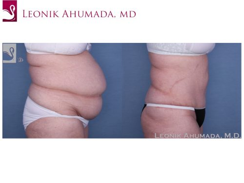 Abdominoplasty (Tummy Tuck) Case #56356 (Image 3)