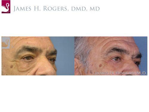 Eyelid Surgery Case #28067 (Image 2)