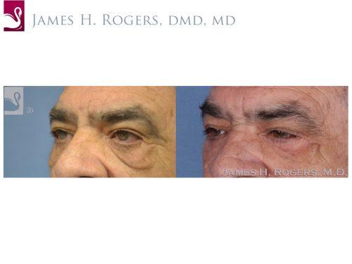 Eyelid Surgery Case #28067 (Image 3)
