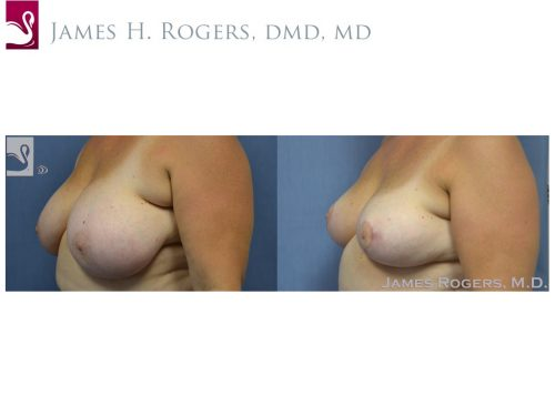 Female Breast Reduction Case #53843 (Image 3)