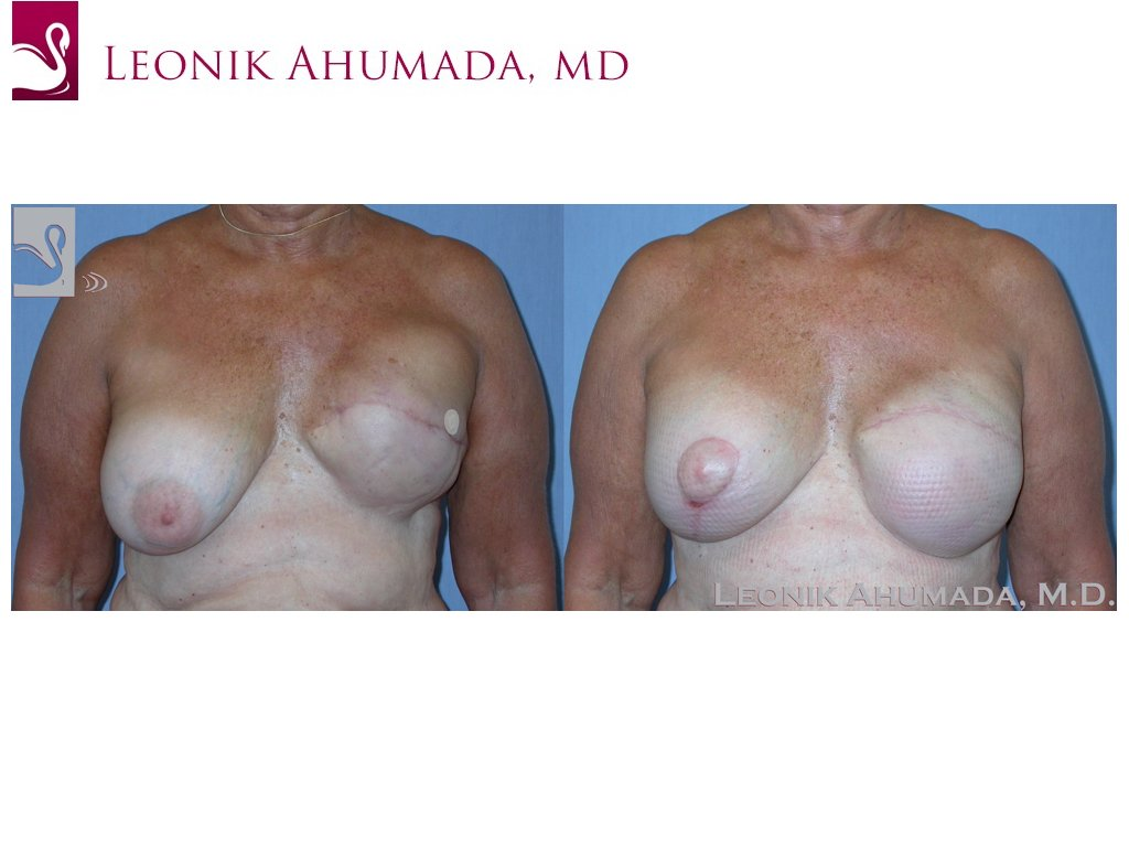 Breast Reconstruction Case #39226 (Image 1)