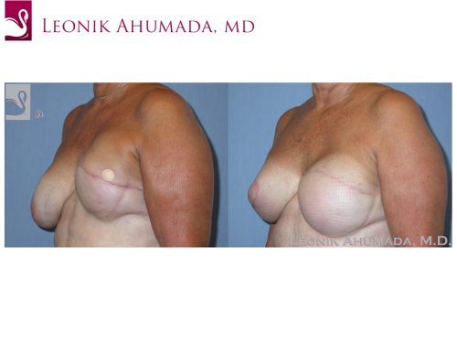 Breast Reconstruction Case #39226 (Image 2)