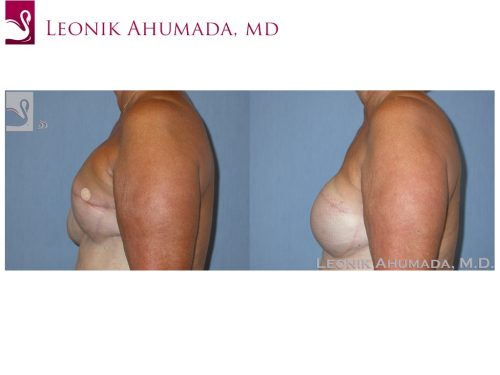 Breast Reconstruction Case #39226 (Image 3)