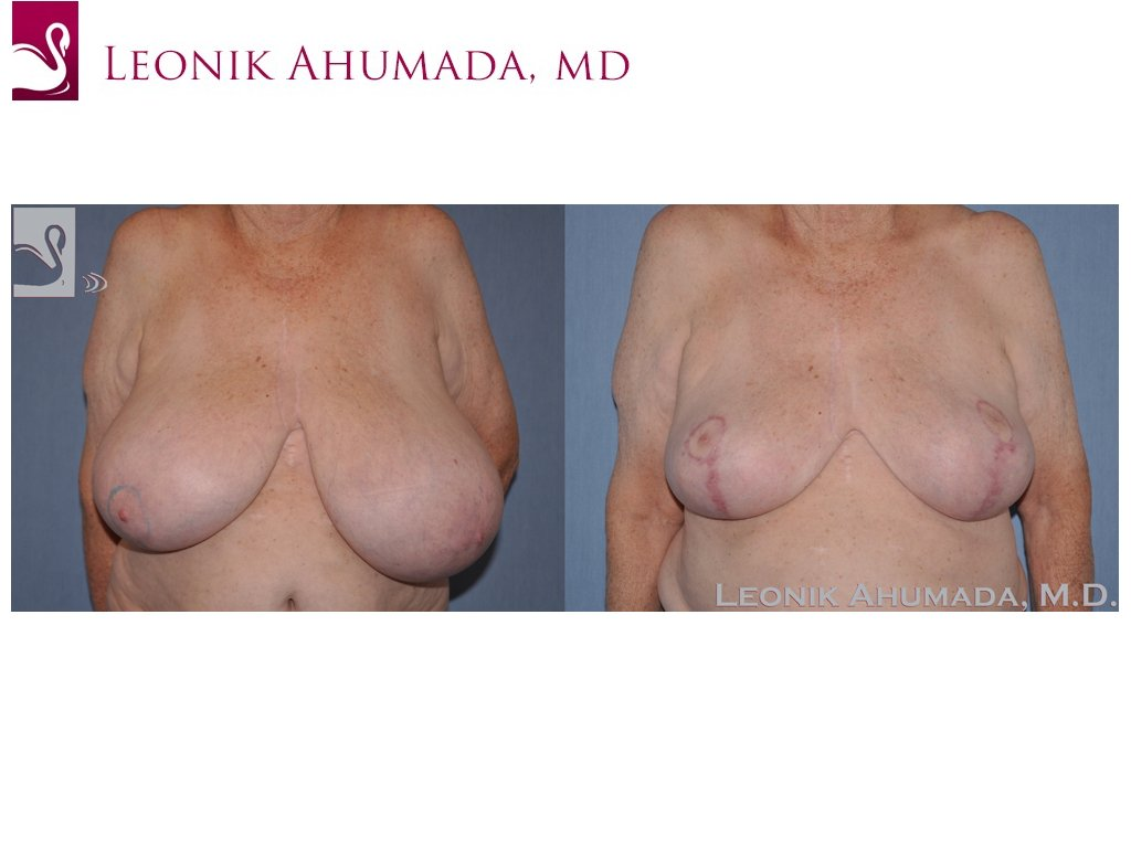 Female Breast Reduction Case #42807 (Image 1)