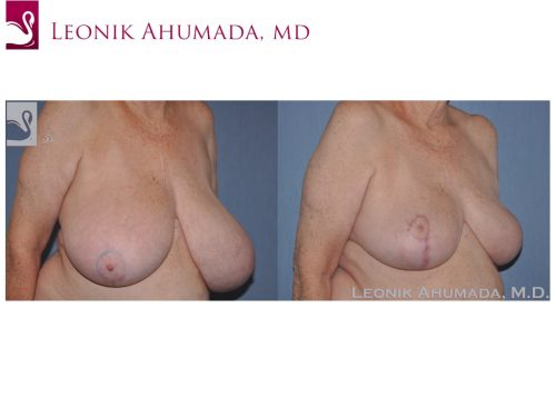 Female Breast Reduction Case #42807 (Image 2)