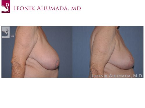 Female Breast Reduction Case #42807 (Image 3)