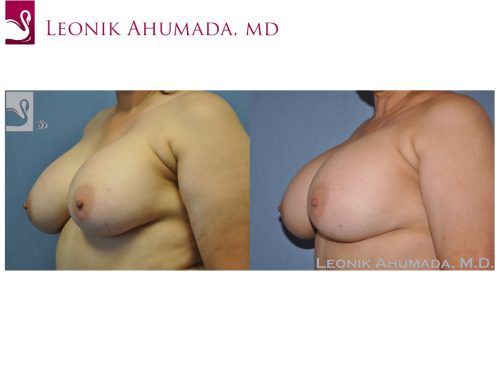 Breast Revisions Case #44722 (Image 2)