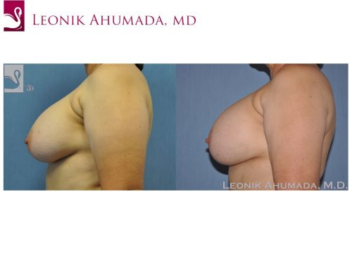 Breast Revisions Case #44722 (Image 3)