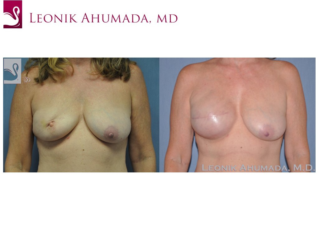 Breast Reconstruction Case #46515 (Image 1)