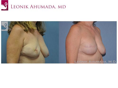 Breast Reconstruction Case #46515 (Image 2)