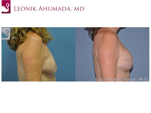 Breast Reconstruction Case #46515 (Image 3)