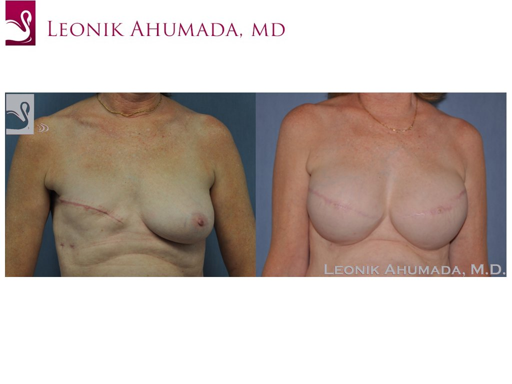 Breast Reconstruction Case #46673 (Image 1)