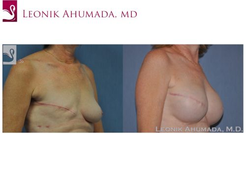 Breast Reconstruction Case #46673 (Image 2)