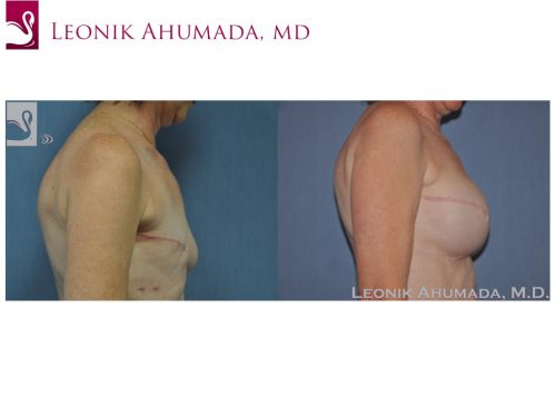 Breast Reconstruction Case #46673 (Image 3)