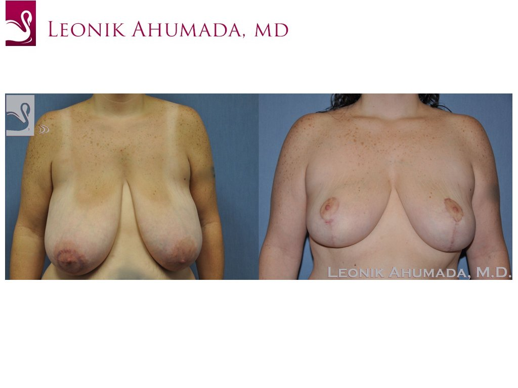 Female Breast Reduction Case #48951 (Image 1)