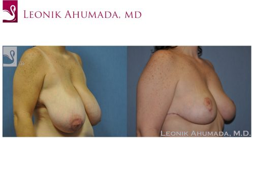 Female Breast Reduction Case #48951 (Image 2)