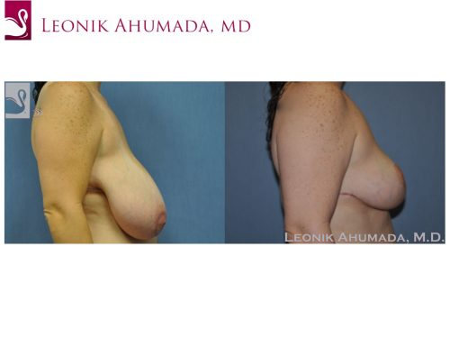 Female Breast Reduction Case #48951 (Image 3)