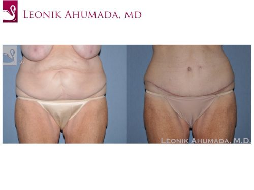 Abdominoplasty (Tummy Tuck) Case #49642 (Image 1)