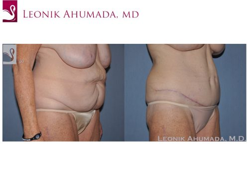 Abdominoplasty (Tummy Tuck) Case #49642 (Image 2)