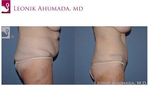 Abdominoplasty (Tummy Tuck) Case #49642 (Image 3)