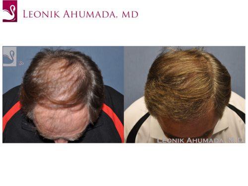Hair Transplant Case #49968 (Image 2)