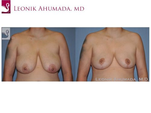 Female Breast Reduction Case #51181 (Image 1)