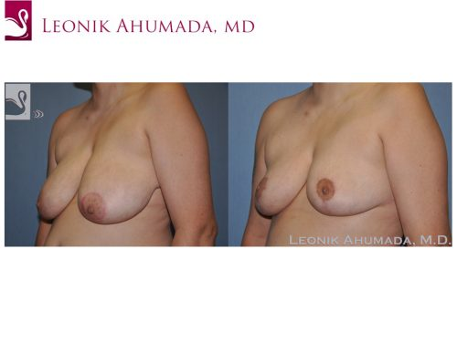 Female Breast Reduction Case #51181 (Image 2)