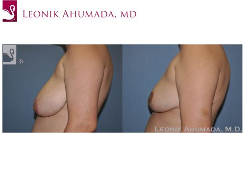 Female Breast Reduction Case #51181 (Image 3)