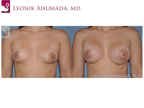 Breast Augmentation Case #51499 (Image 1)