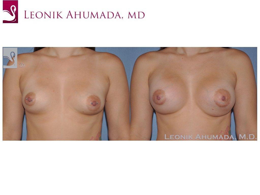 Breast Augmentation Case #51499 (Image 1)