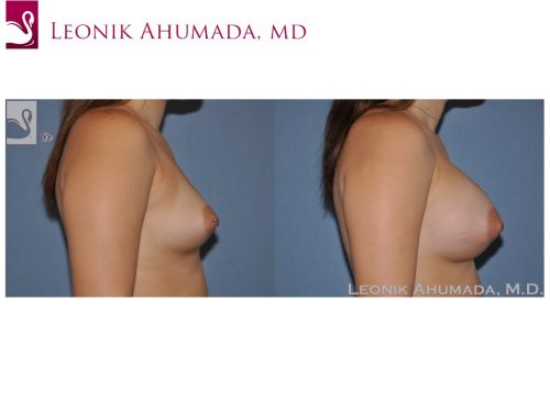 Breast Augmentation Case #51499 (Image 3)