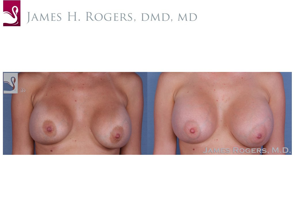 Breast Revisions Case #36278 (Image 1)