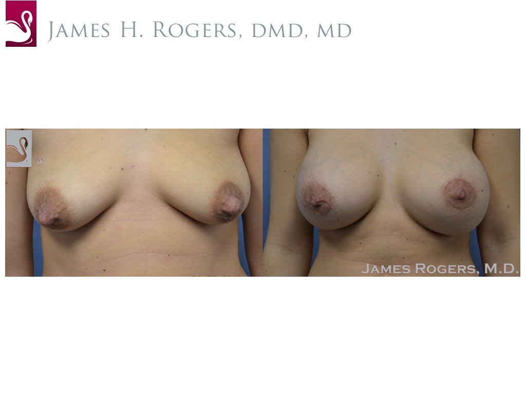 Breast Augmentation Case #50609 (Image 1)