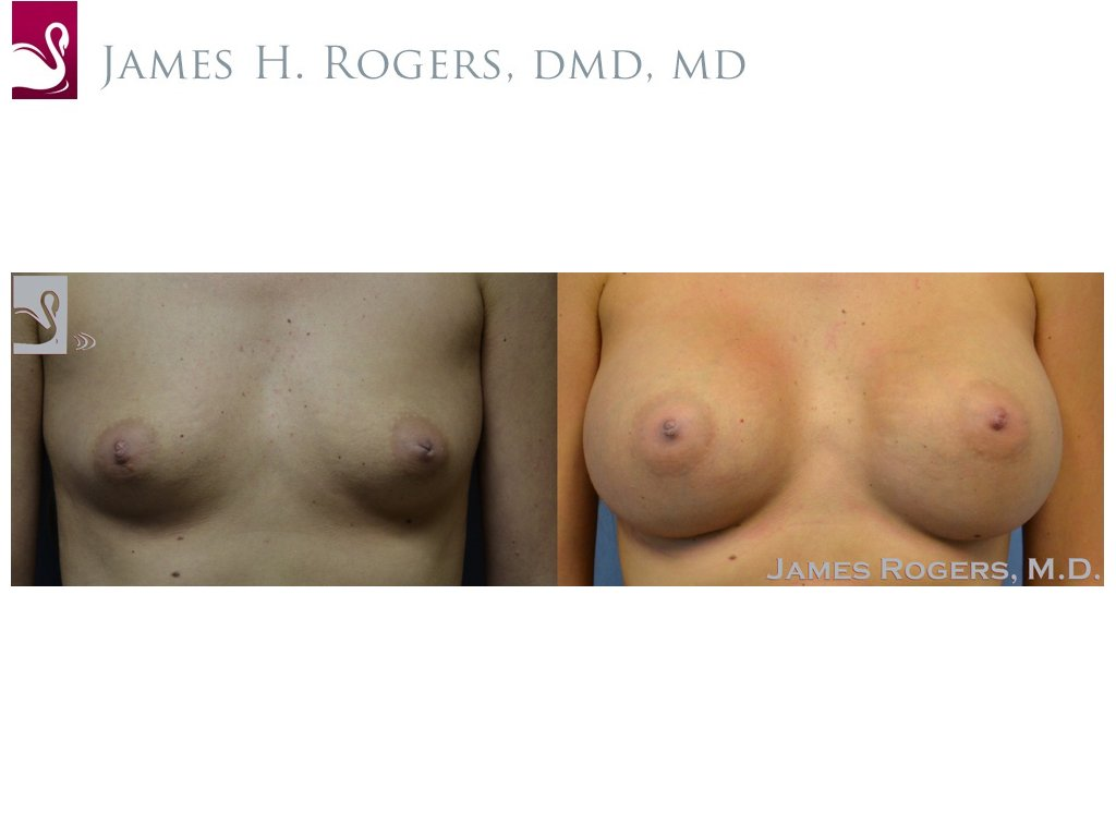 Breast Augmentation Case #52769 (Image 1)
