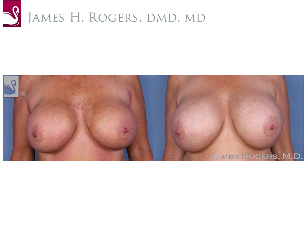 Breast Revisions Case #23065 (Image 1)