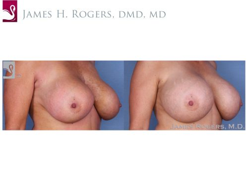Breast Revisions Case #23065 (Image 2)