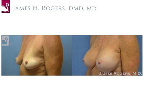 Breast Augmentation Case #23716 (Image 3)