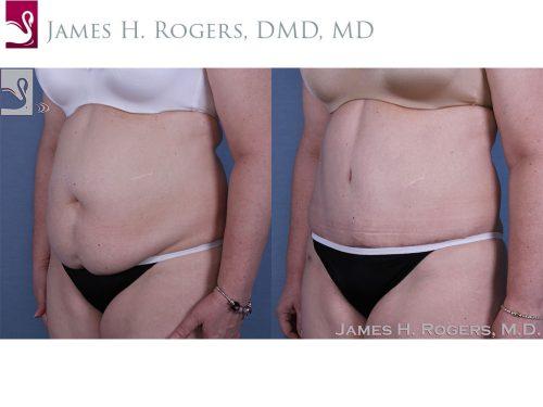 Abdominoplasty (Tummy Tuck) Case #58407 (Image 2)