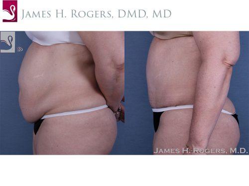 Abdominoplasty (Tummy Tuck) Case #58407 (Image 3)