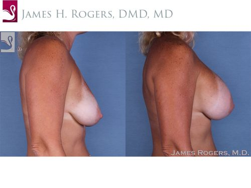 Breast Augmentation Case #12225 (Image 3)