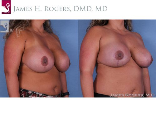 Breast Revisions Case #27846 (Image 2)