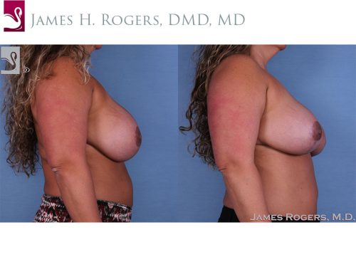 Breast Revisions Case #27846 (Image 3)